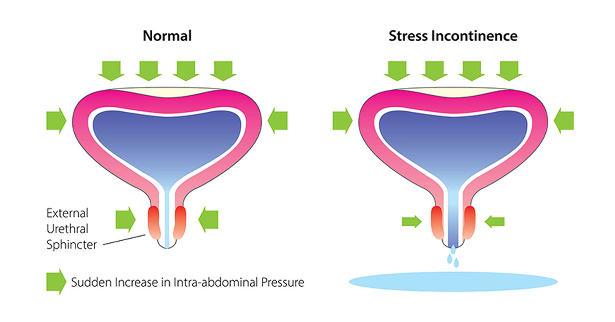 Incontinence in the Female Athlete